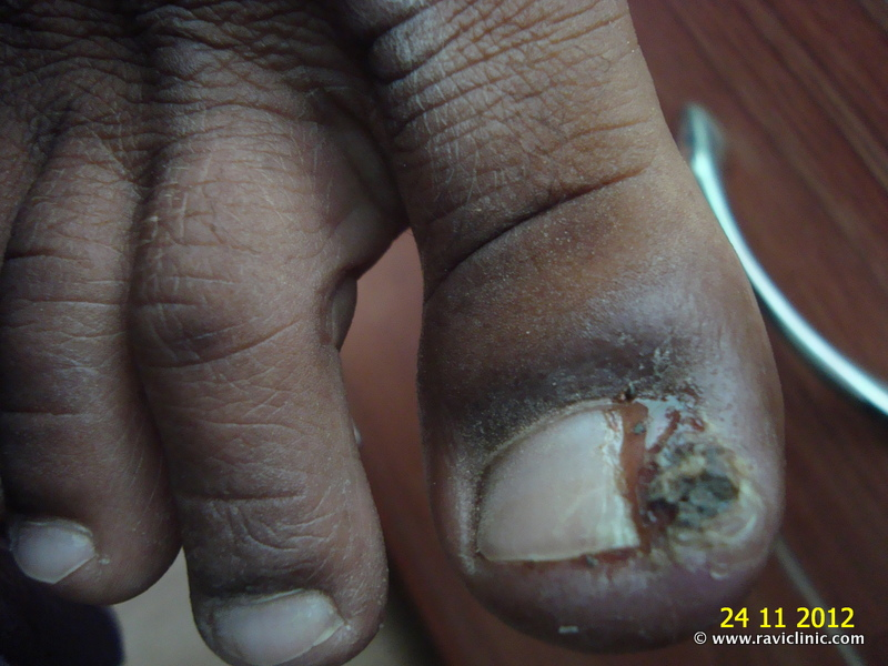 A Case of Felon at toe nail cured by Homeopathy