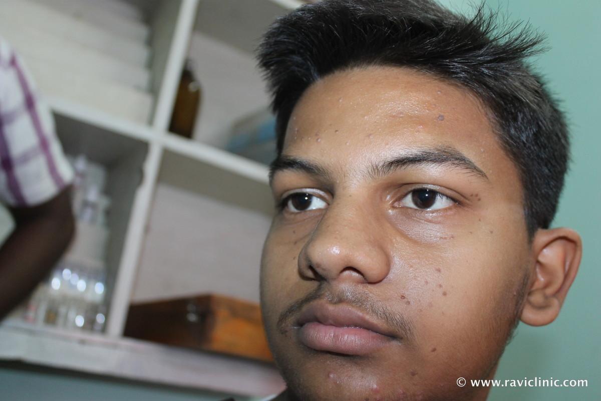 A case of Face wart