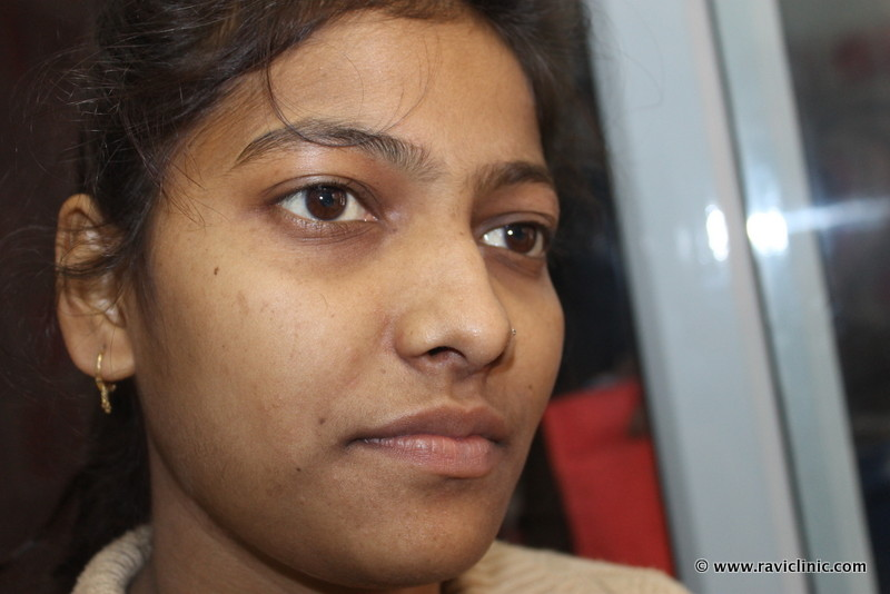 A Case of Air Born Contact Dermatitis cured by Homeopathy