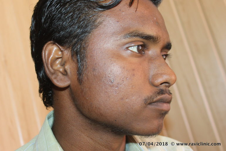 A case of Acne cured by Homeopathy