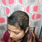 Hair Fall Since Two Years Cured