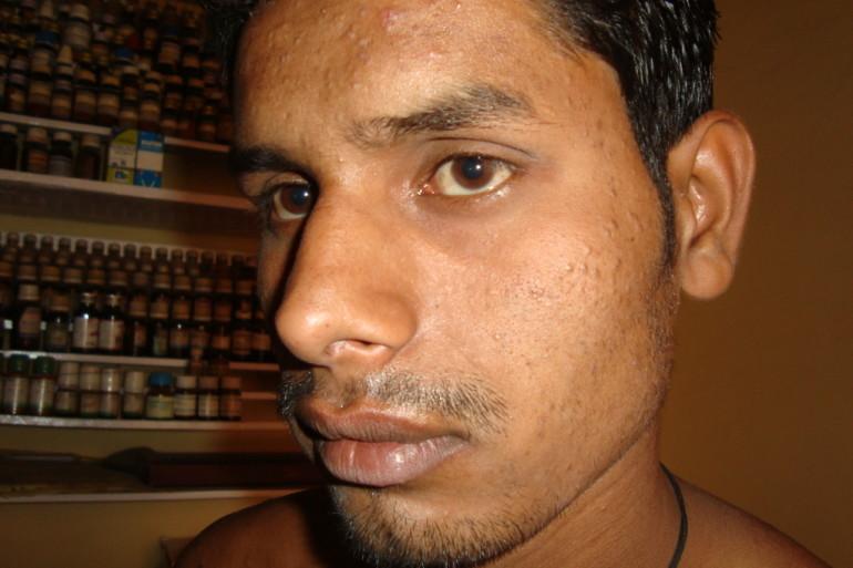 Acne case