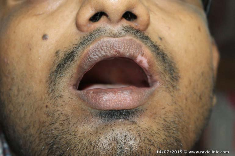 Vitiligo on Lip