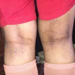 A case of Phrenoderma cured by Homeopathy