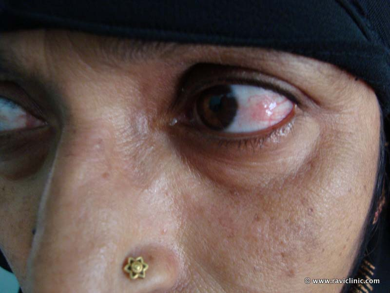 A case of Episcleritis Since Many years