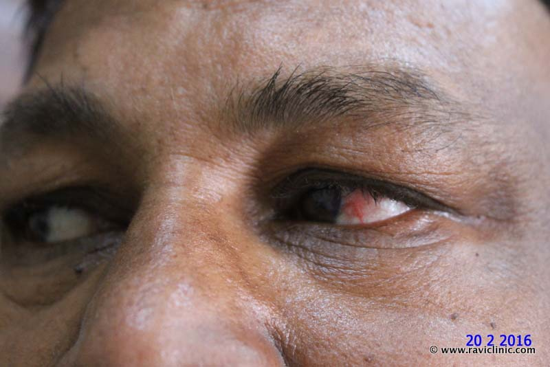 A case of Frequent Eye Allergy Episcleritis
