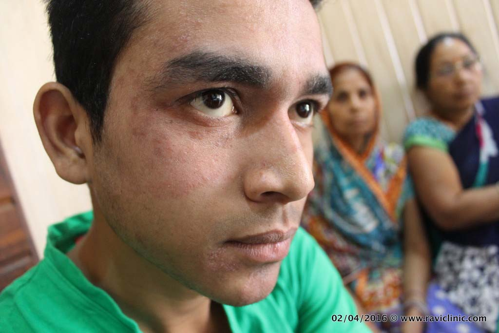 Tinea/Ringworm Infection on Face