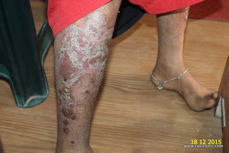 Psoriasis since many years