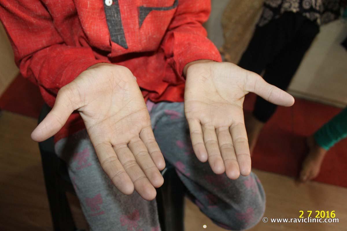 A case of Hyperlinea Palm