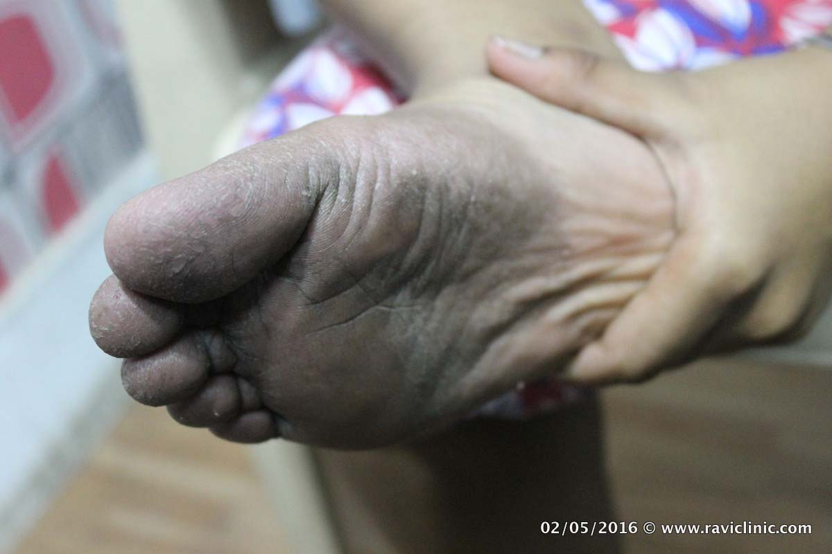 Psoriasis Feet in young girl