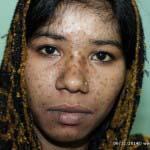 A case of Acne