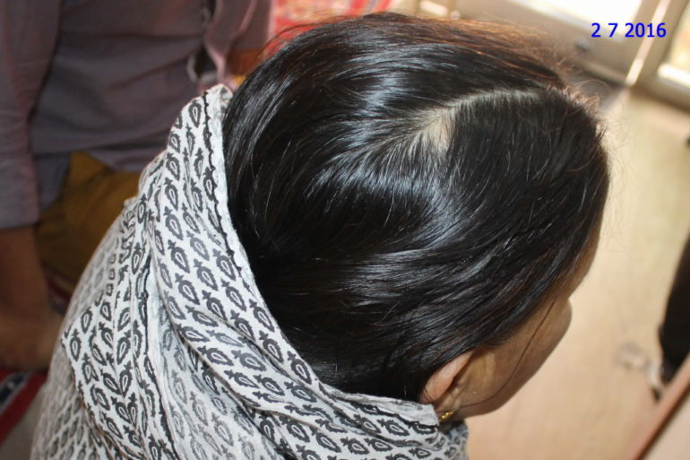 Alopecia Areata In old Lady