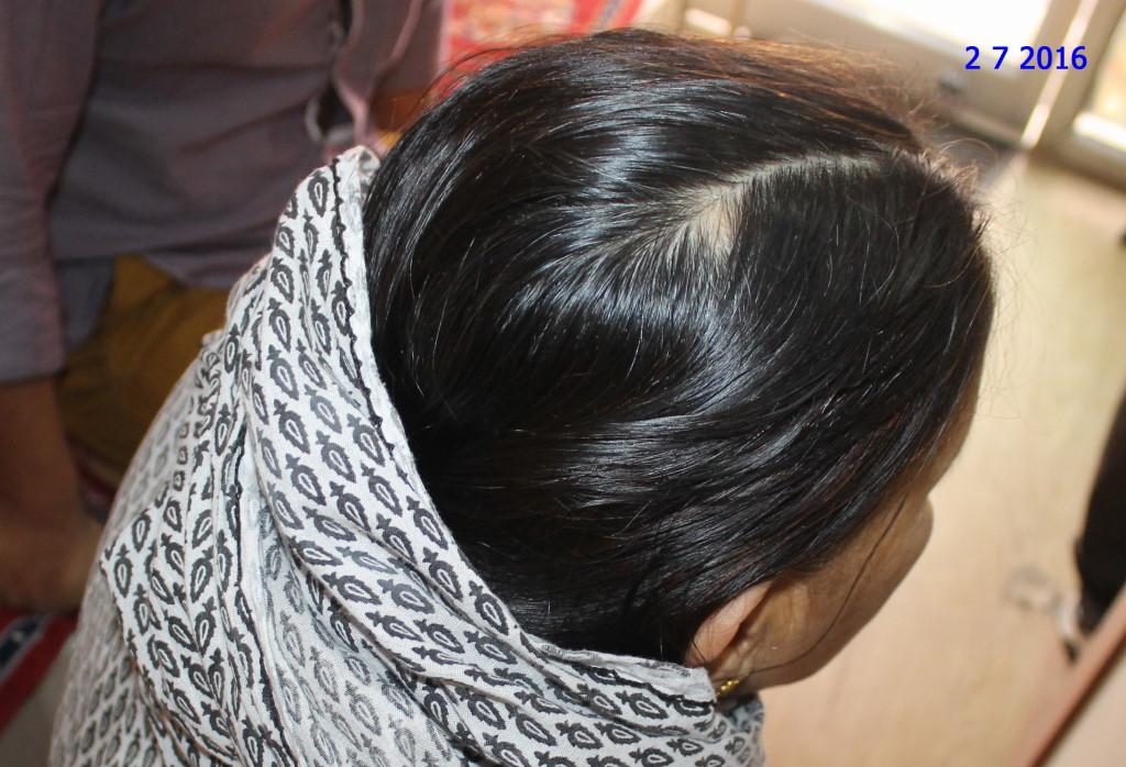 Alopecia Areata In old Lady