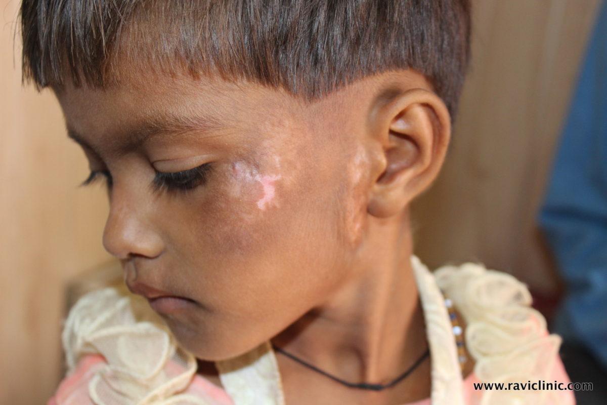 A case of Vitiligo on Face due to Eruptions