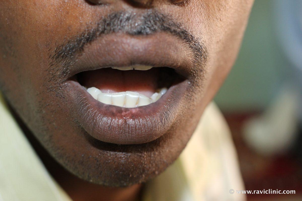 A case of Vitiligo on Lips