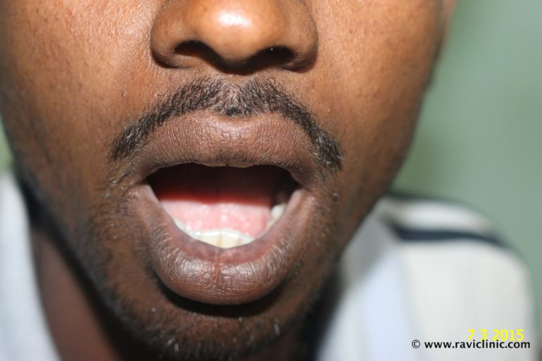 A case of Vitiligo on Lips