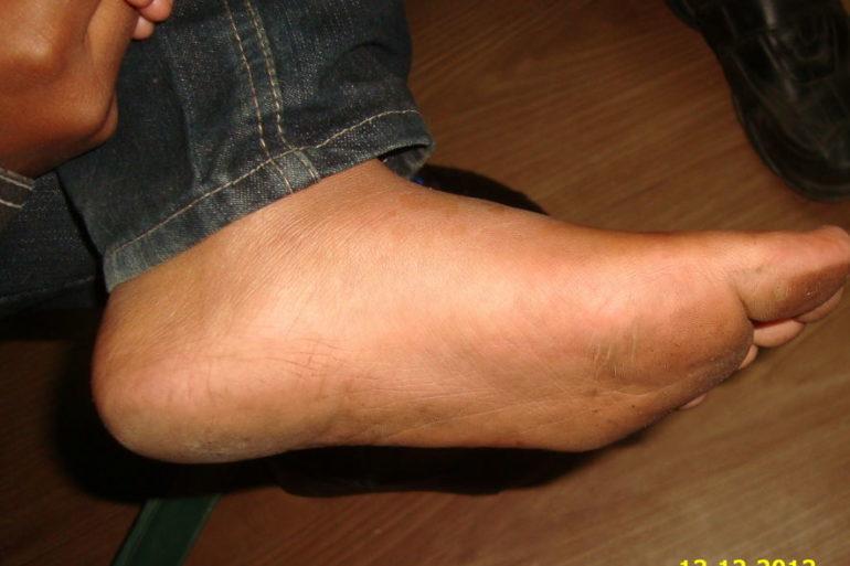 Psoriasis at Feet
