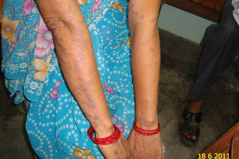 Lichen Plannus In Young Lady Cured by Classical Homeopathy