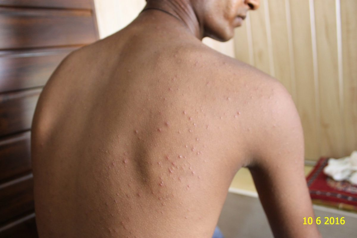 A Case of Pompholyx or Dyshidrosis and Acne 11 years followwup.