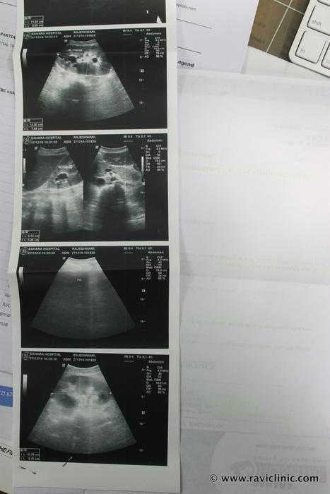 Kidney Stone Medical Renal Disease and UTI