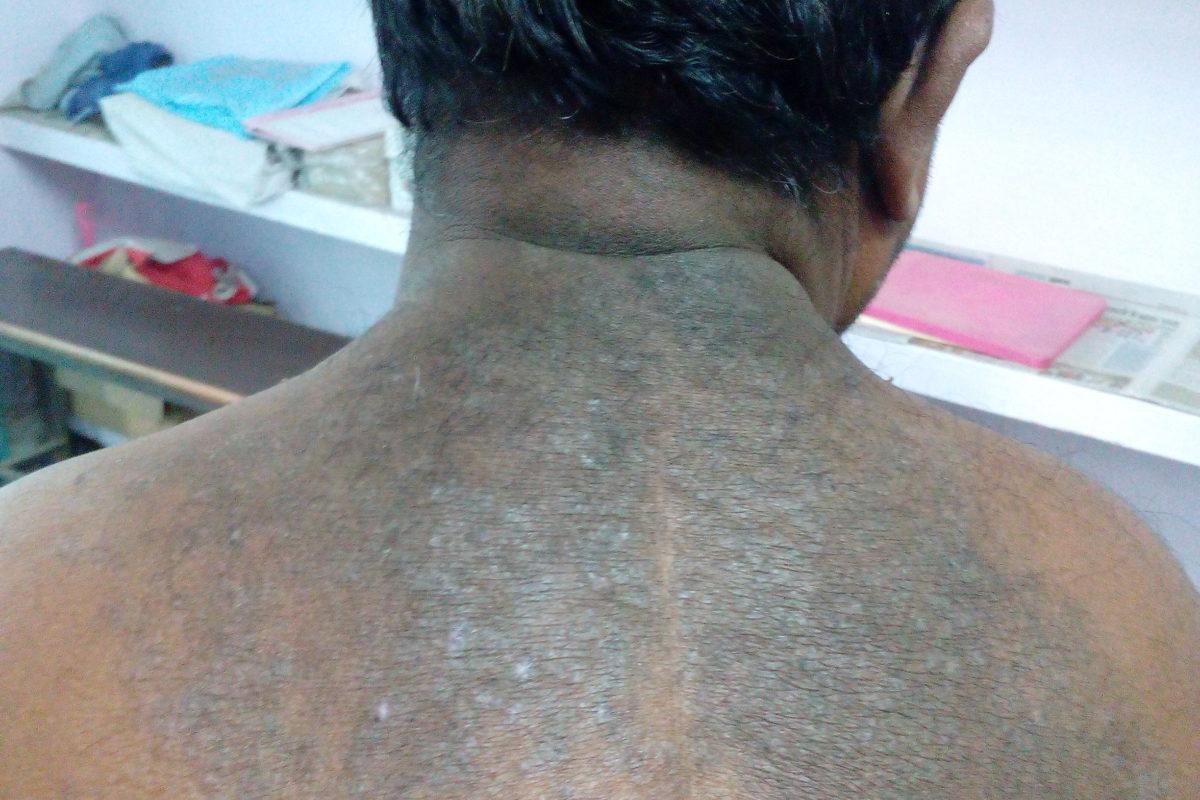 A Case of skin eruption on back