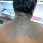 A Case of skin eruption on back