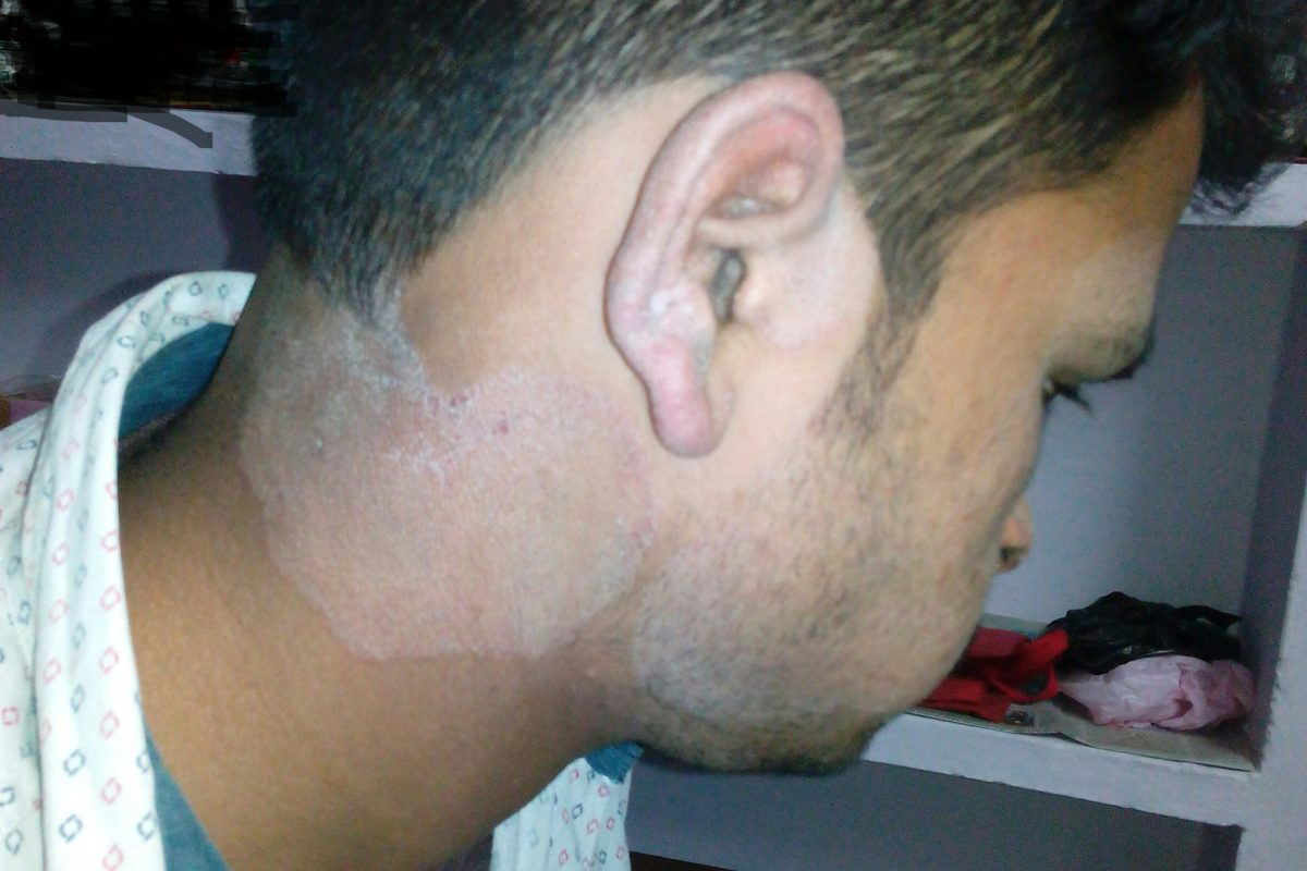 A case of Tinea Corporis