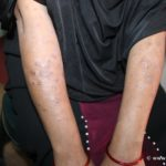 A case of Lichen Plannus in A lady Cured By Homeopathy