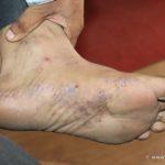 A case of Lichen Plannus Getting Cured