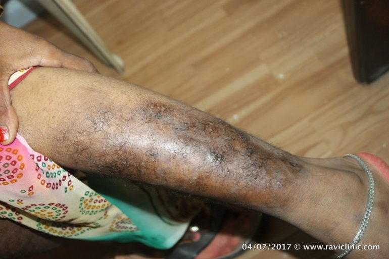 A case of Psoriasis Since Years Cured