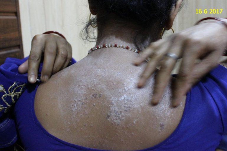 Lichen Plannus Homeopathic Cure