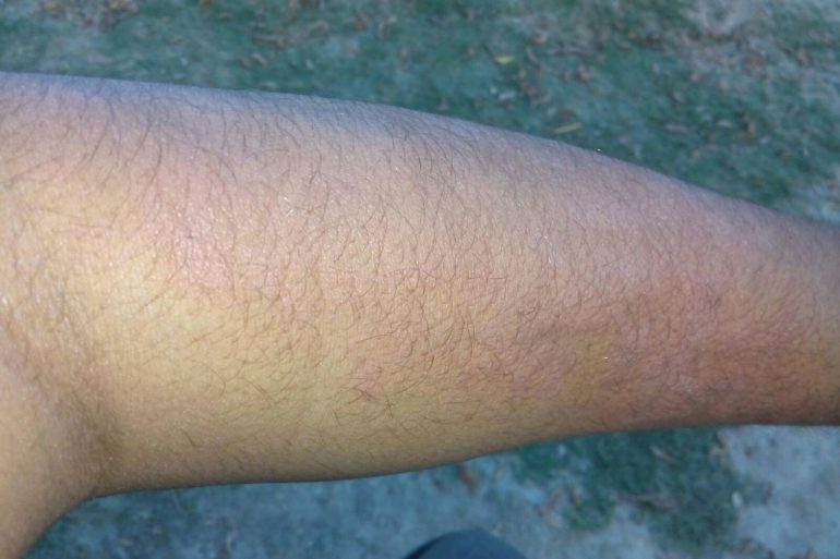 Chronic Urticaria Patient Who has already taken 1500 tablets of Citrazine
