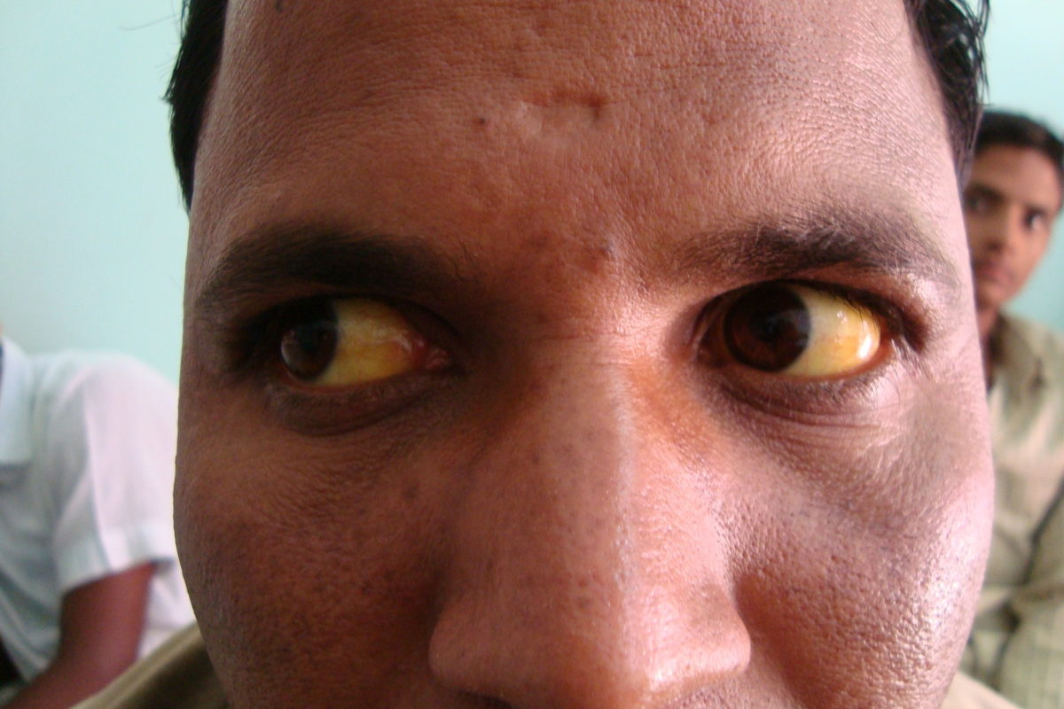 A case of Jaundice from Mumbai Serum Bilirubin 14.17