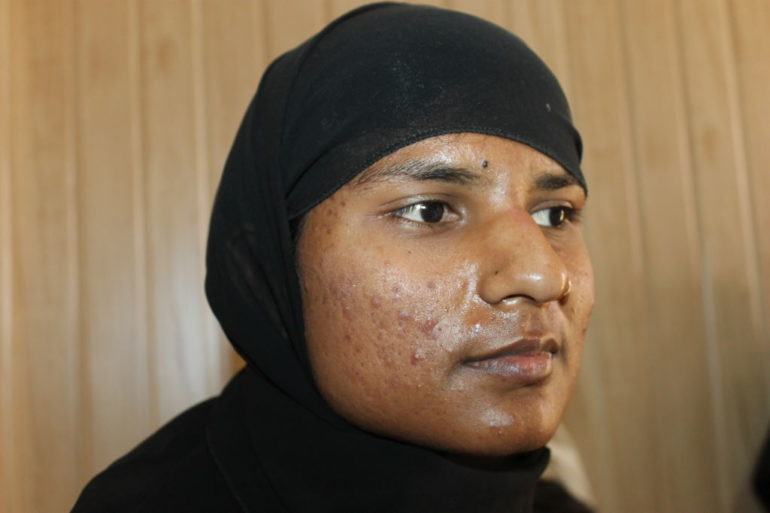A case of Acne in Young Unmarried Girl
