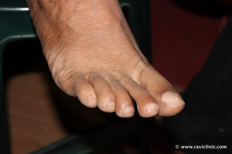 A case of Psoriasis at Feet