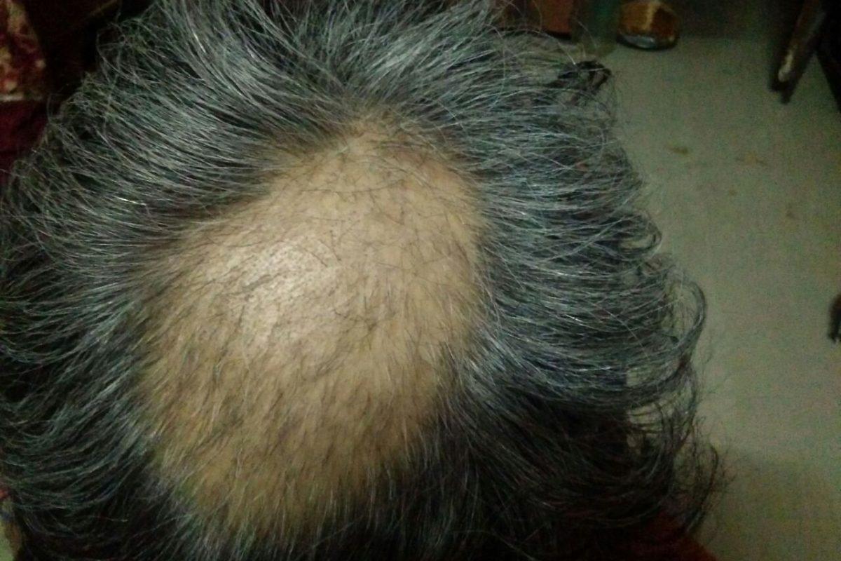 Trichotillmania  Hair Plucking Disorder