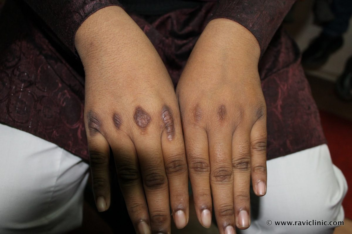 Acanthosis Nigricans Cured Case