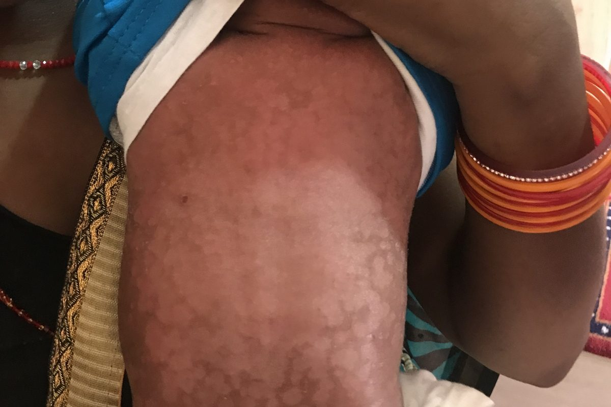 A case of Severe Staphylococcal Infection