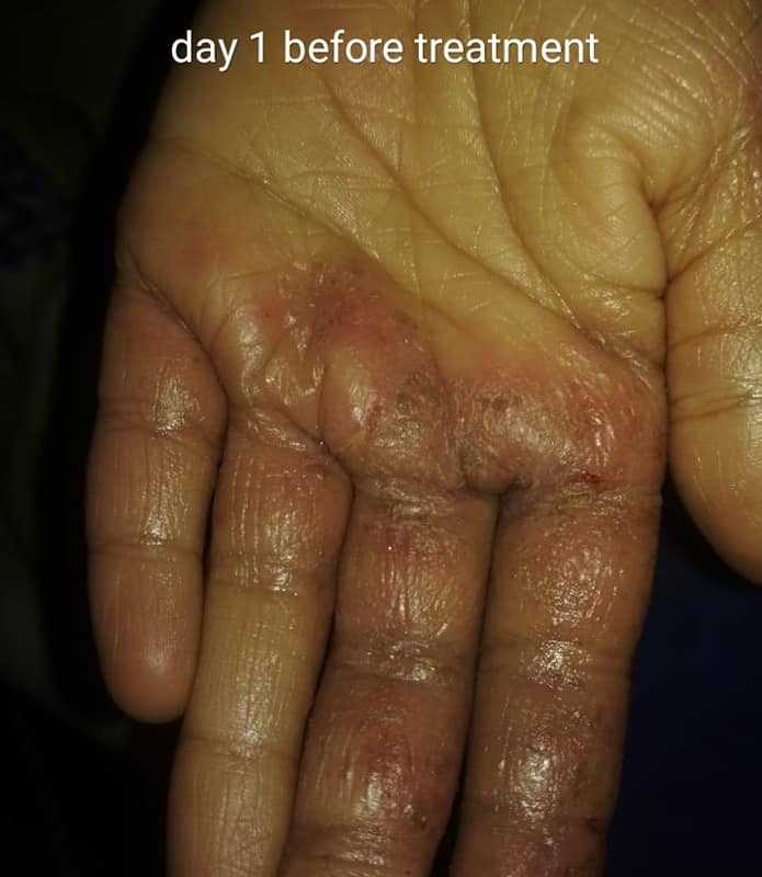 Eczema of 3 Years Cured by Homeopathy