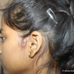 Pre Auricular Sinus For 2 years Getting cured