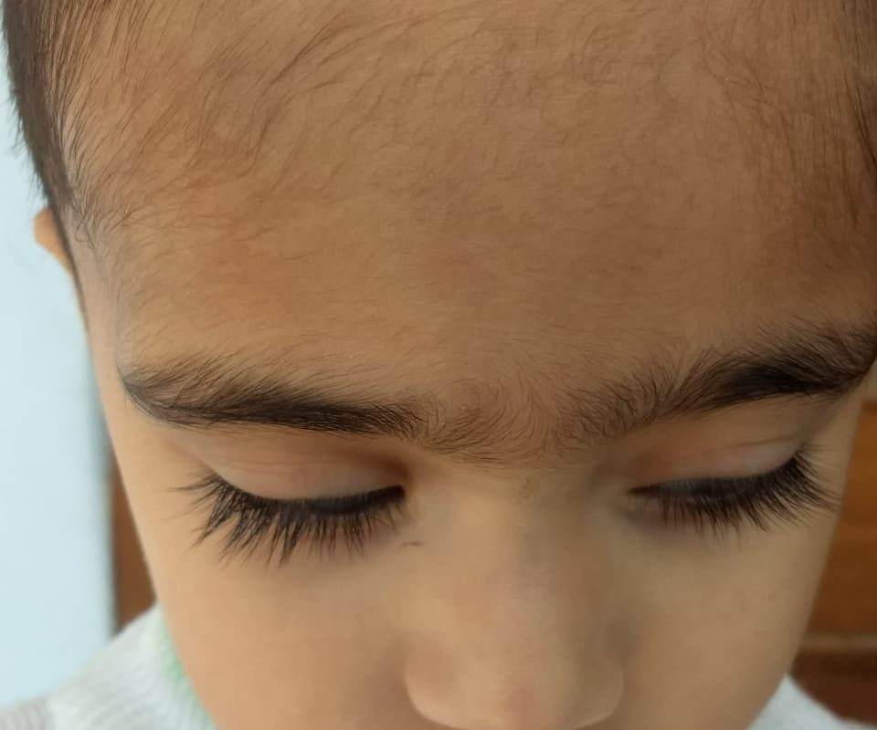 Case of Chalegion for 6 Months in a Child