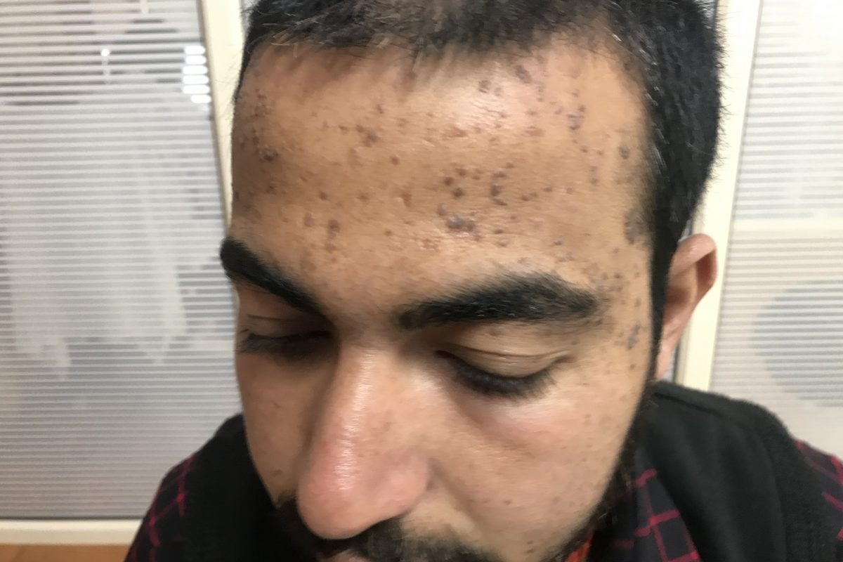 Warts for 3 Years and Failed 2 times Cauterisation Cured