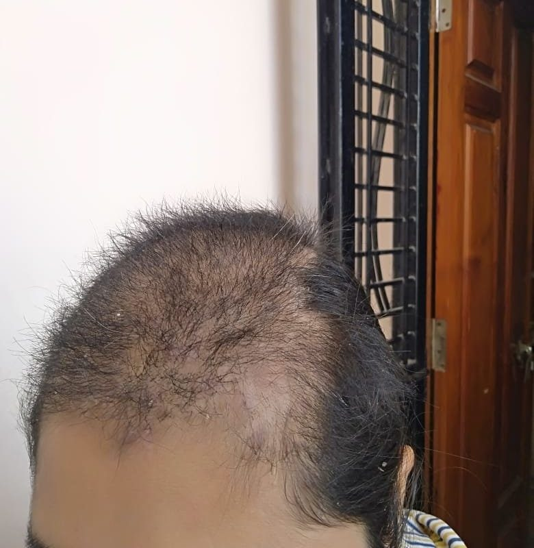 Trichotillomania Since 13 Years getting Cured