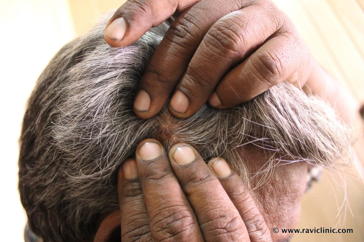 Pyogenic Granuloma of Scalp