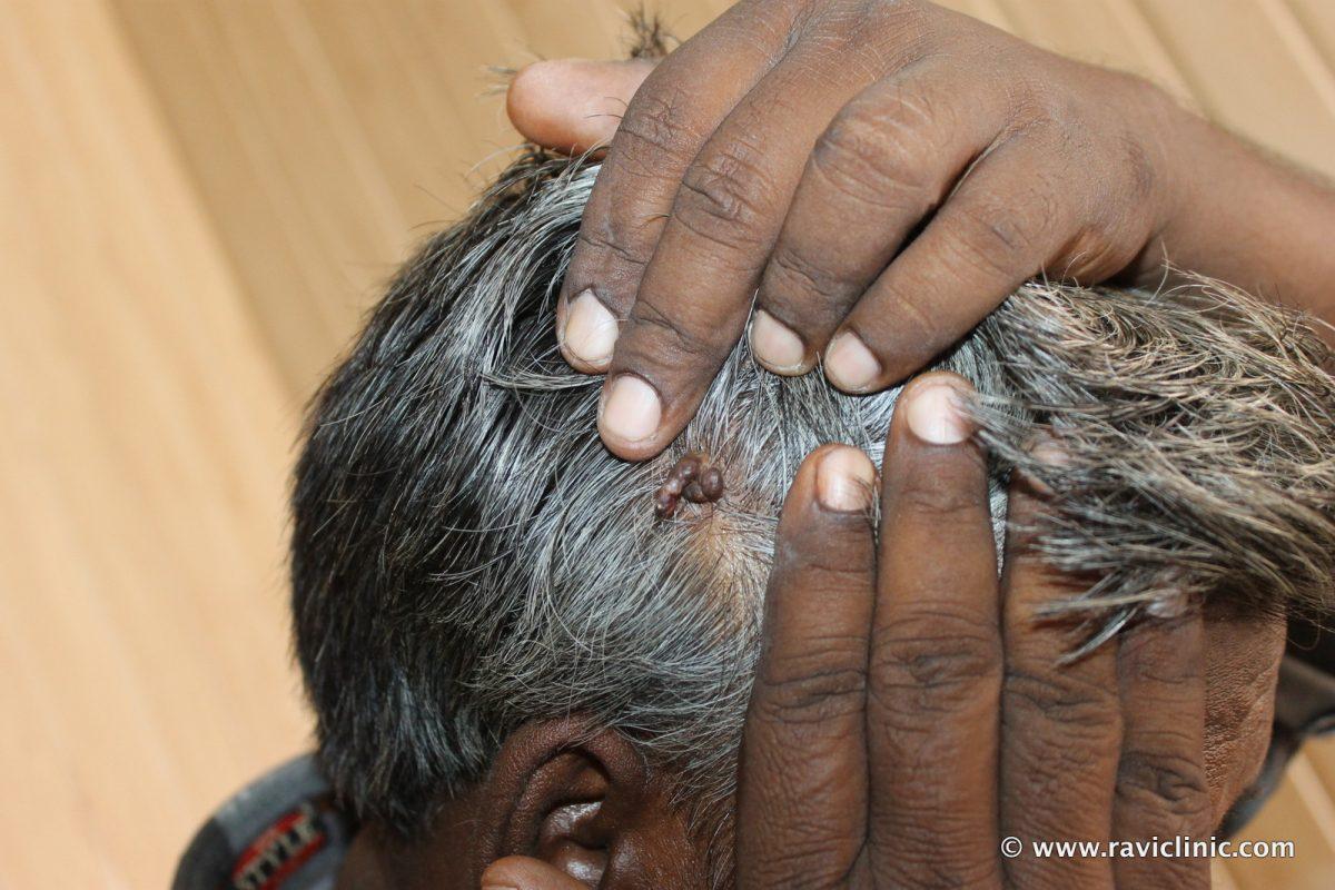 Pyogenic Granuloma of Scalp