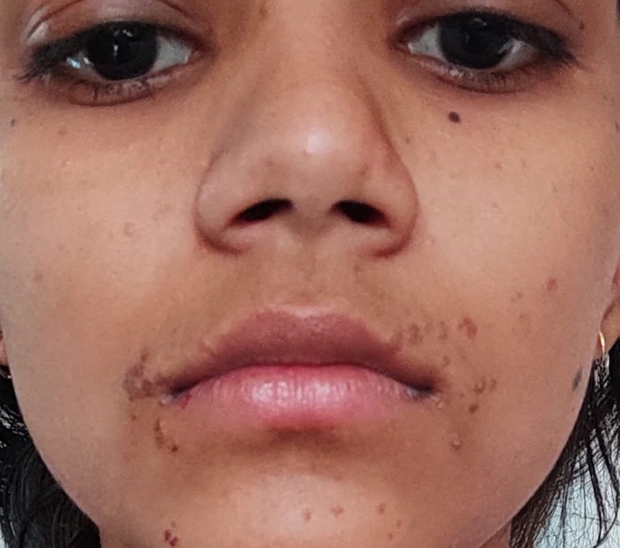 Ugly Warts Cured with Classical Homeopathy