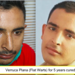 Verruca Plana or Flat warts for 5 years cured