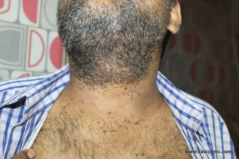 Ugly Warts- Verruca Plana-  for many Years Cured with Classical Homeopathy