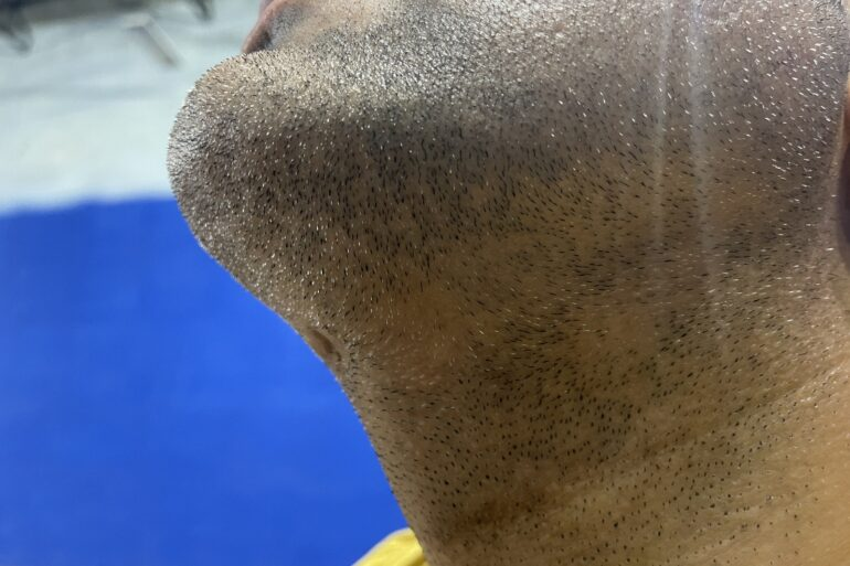 Cure of Alopecia Barbae with Homeopathy