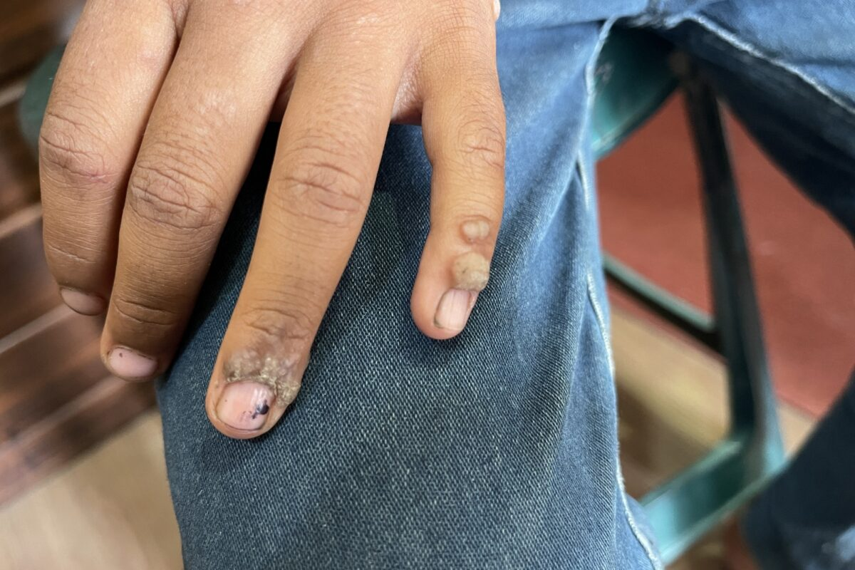 A case of Periungual warts For 6 Months Cured in 6 Days.